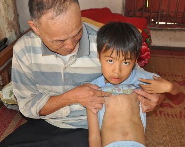 Ca mổ lần trước vẫn còn để lại vết sẹo dài thì nay cậu bé Liệu lại tiếp tục phải điều trị.