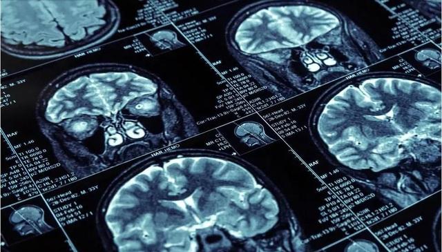 Tuổi thơ nghèo có thể ảnh hưởng đến sự phát triển trí não - Ảnh 1.