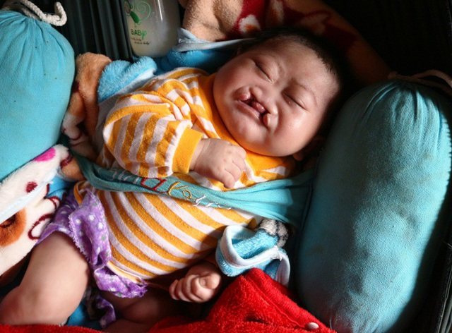 Bị hở hàm ếch bẩm sinh nhưng cháu Khánh chưa một lần được đến bệnh viện chữa trị.