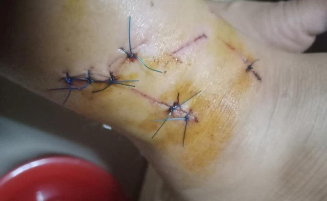 Vết thương ở cổ chân chị Hiền được cho là do ông Nhật gây ra