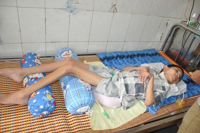 Đang học lớp 6, cậu bé Trường do giẫm phải gai nên bị nhiễm trùng uốn ván.