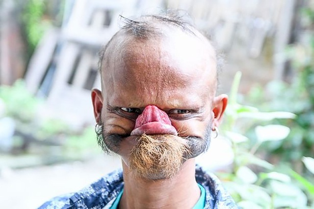 Với khả năng dùng lưỡi… liếm trán, Yagya Bahadur Katuwal khiến trẻ em sợ hãi.