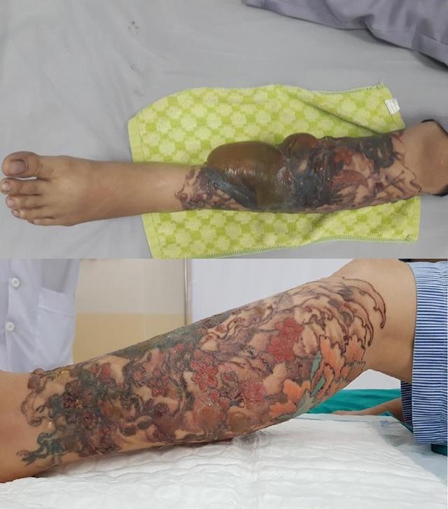Chân bệnh nhân thời điểm nhập viện và sau 3 ngày điều trị