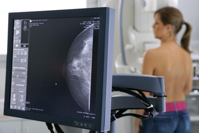 Các xét nghiệm tầm soát ung thư chỉ dành cho nữ - 1