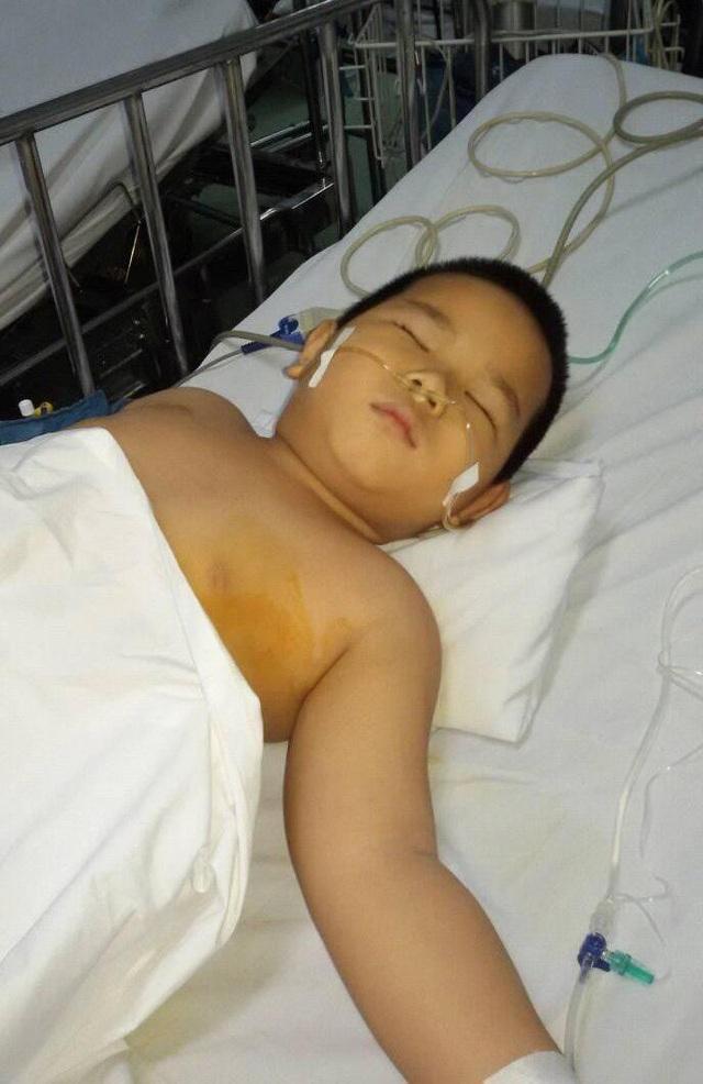 Ca mổ tách các khối u ở phổi trái của Nhất Huy đã thành công nhưng sau ca mổ, cháu phải vào thêm 7 toa hóa chất