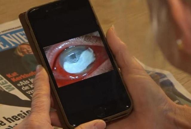 Ký sinh trùng làm kén trong mắt của Petra