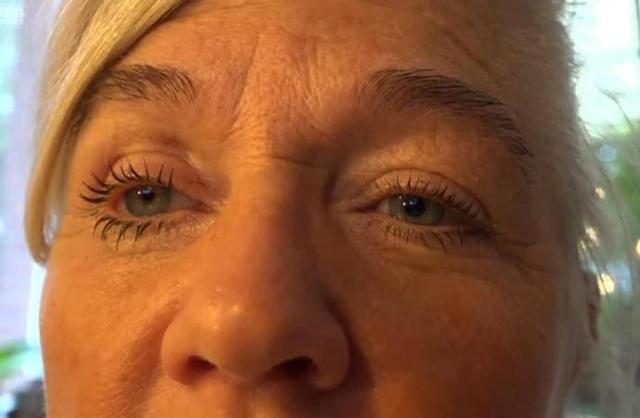Hiện tại, Petra đang sử dụng mắt giả
