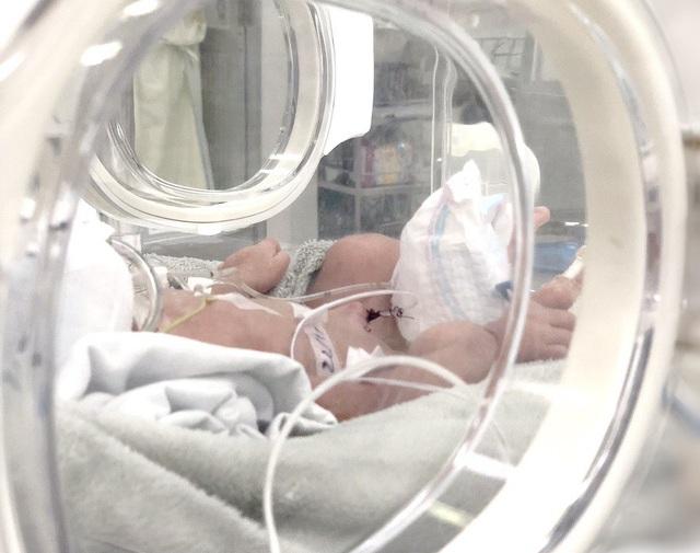 Bệnh nhi đang được chăm sóc tích cực tại khoa Hồi sức Sơ sinh