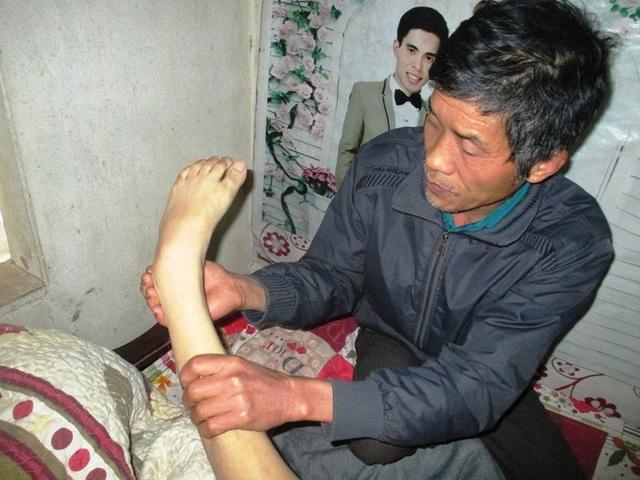 Do chưa mổ được khối u nên chân tay của Tùng bị tê liệt, co quắp