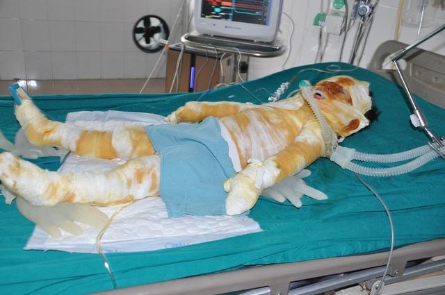 Bị bỏng nặng đến 82% cơ thể, bé Quỳnh Như (4 tuổi) đang phải trong tình trạng rất nặng.