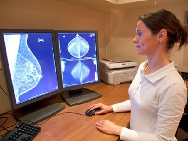 Điều trị ung thư vú bằng phương pháp xạ trị có lợi hơn có hại - 1