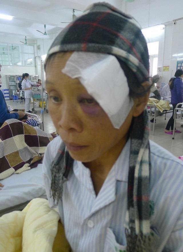Chị Slú bị suy tim độ 4 với các buồng tim đều giãn gấp 3 người bình thường, được chuyển cấp cứu từ bệnh viện tỉnh Tuyên Quang lên bệnh viện Bạch Mai.