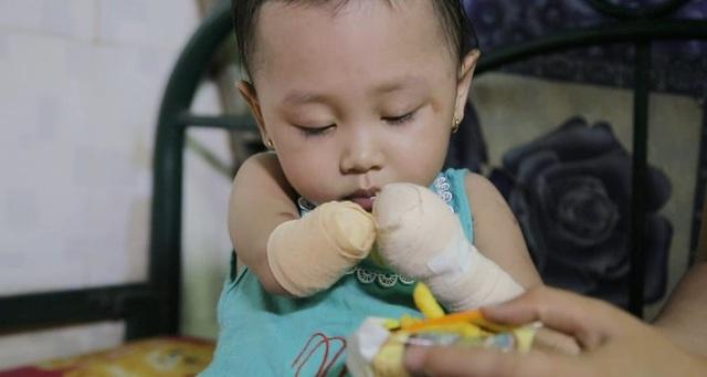 Bé Ngọc Quyên sinh năm 2015 ở Tiền Giang, bé từng lâm vào tình trạng nguy kịch bởi căn bệnh Tiểu cầu viêm não Nhật Bản. Để tạm giữ được sinh mạng của cô bé, các bác sĩ đã phải cắt dần tứ chi, thay máu liên tục. Tính đến năm ngoái, bé đã trải qua tổng cộng 4 lần phẫu thuật.