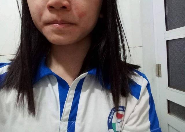 Một học sinh của Trường THCS An Khánh, Hà Nội bị nổi mẩn ngứa mặt, cổ.