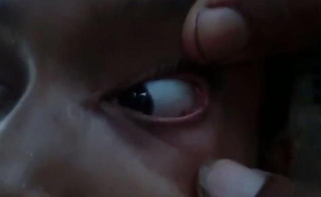 Các bác sĩ đã gắp ra ít nhất 60 con kiến trong mắt Ashwini