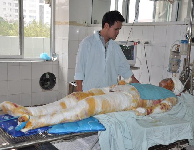Bị bỏng gas 61% cơ thể trong đó có 51% bỏng sâu khiến cho Hương rơi vào tình trạng nguy kịch.