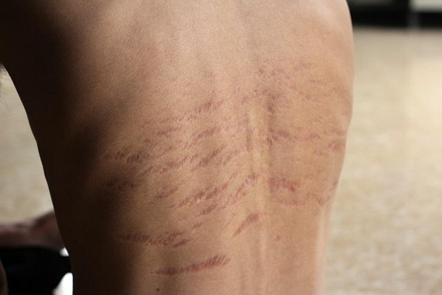 Căn bệnh suy thận khiến những mảng da lớn trên lưng của Quân sau khi bị phù nề giờ rạn thành nhiều mảng lớn.