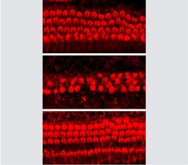 Thuốc mới có thể hỗ trợ ngăn ngừa mất thính giác - 1