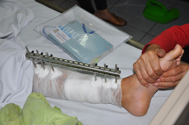 Bên chân bị đóng đinh của em phải mất từ 3-6 tháng nữa mới hồi phục.