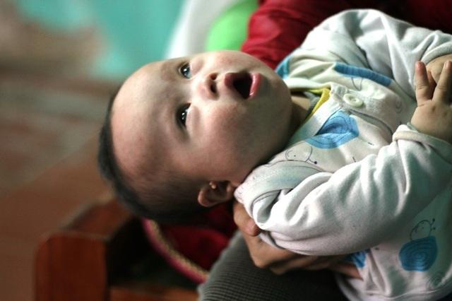 Tin bệnh của con như tiếng sét đánh ngang tai khiến cho Trang ngã quỵ, càng đau đớn hơn khi biết con mình mắc thêm hội chứng DOWN bẩm sinh