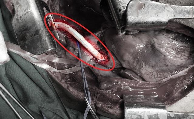 Vị trí động mạch bị đứt được thay thế bằng mạch máu nhân tạo