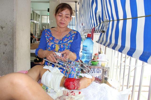 Người mẹ đau đớn khóc lặng khi phụ giúp điều dưỡng chăm sóc vết thương cho con