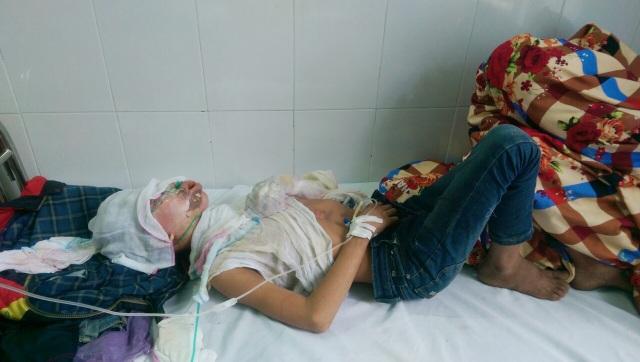 Một trong hai nạn nhân trong vụ bỏng đang được điều trị tại Trung tâm Y tế Hải Hà. (ảnh: QTV)