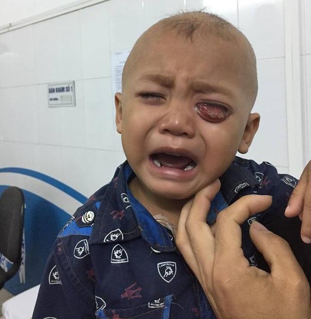 Bị ung thư võng mạc cả 2 mắt khiến tính mạng cậu bé Hùng vô cùng nguy kịch.. Những ngày đầu đến viện, Hùng khóc cả ngày vì vô cùng đau đớn.
