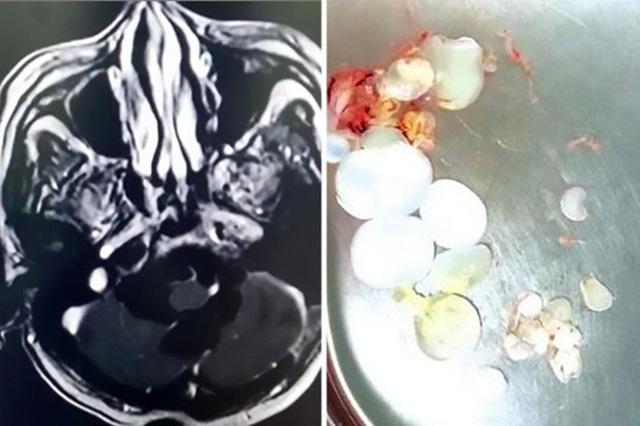 Sán sinh trưởng trong não của ông Mingsheng với số lượng khổng lồ