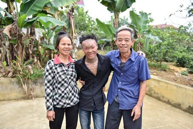 """Nụ cười lạc quan, hạnh phúc của Thọ """"người cá"""" bên gia đình"""