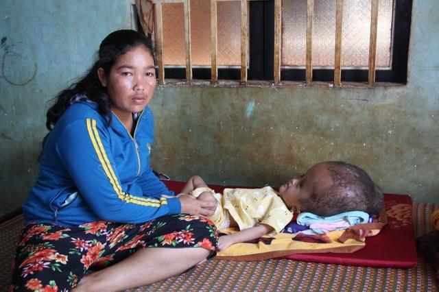 Chị HMet rất vui mừng vì đã có kinh phí để lo chạy chữa bệnh cho con gái bị bệnh não úng thủy