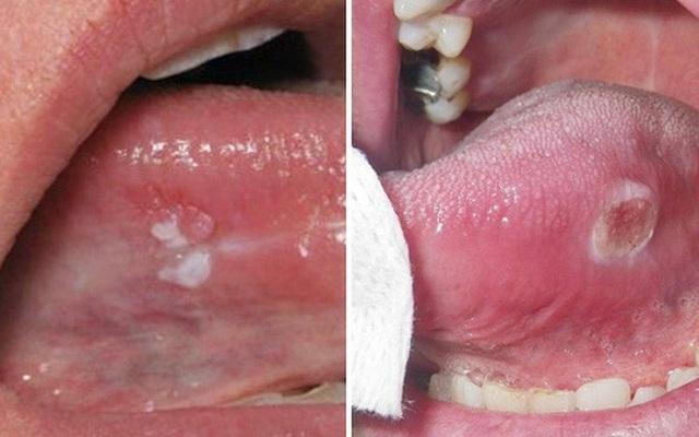 Ung thư lưỡi dễ nhầm lẫn với các bệnh ở miệng thông thường