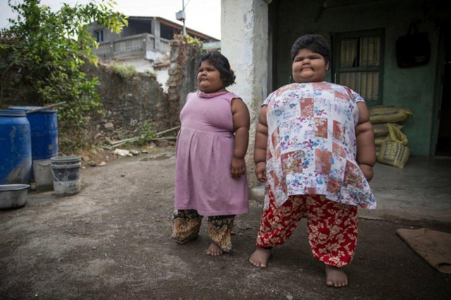 Trước đây, tổng cân nặng của hai bé gái lên tới 22 stone (gần 140 kg)