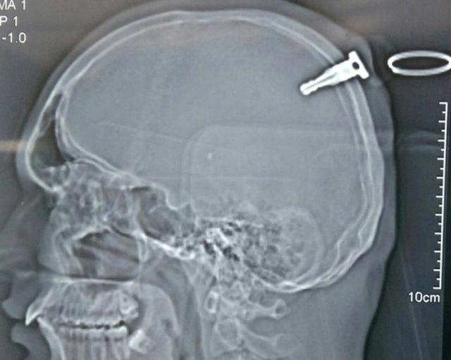 Ảnh chụp X quang cho thấy chìa khóa cắm thẳng vào hộp sọ của bệnh nhân