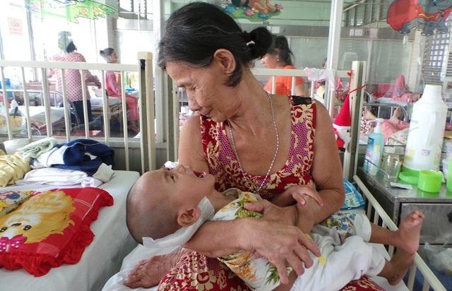 Bé trai 2 tuổi đối mặt với nhiều biến chứng nguy hiểm của bệnh lao vì không được chích ngừa