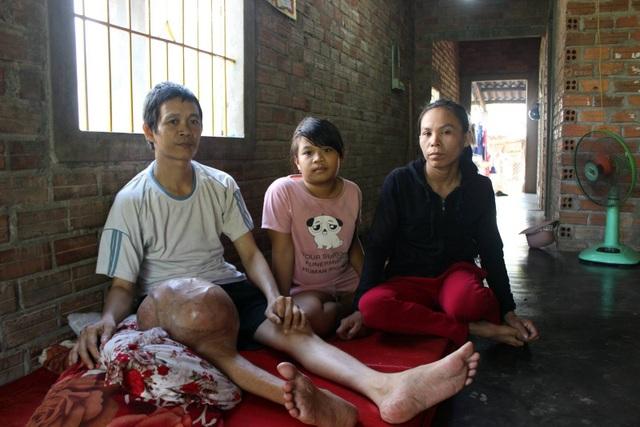 Anh Quy đang sống với vợ và con gái 10 tuổi trong 1 căn nhà cấp 4 đã xuống cấp