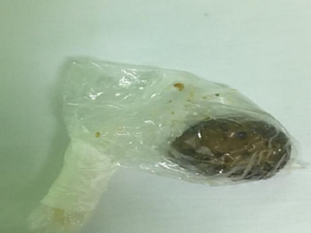 Cây nấm khoảng 5cm là nguyên nhân khiến người bệnh bị tắc ruột