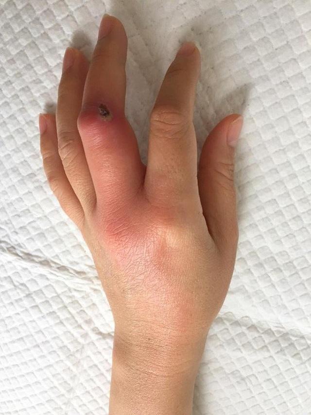 Bàn tay nữ bệnh nhân nhiễm trùng nặng do chủ quan với vết xướt