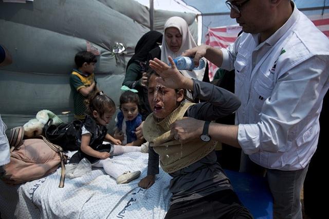 Nhiều quốc gia đã lên tiếng phản đối động thái chuyển đại sứ quán của Mỹ tại Jerusalem và kêu gọi các bên tìm kiếm giải pháp hòa bình. Cuộc xung đột giữa Israel và Palestine được dự đoán sẽ còn tiếp tục kéo dài trong nhiều ngày tới. Trong ảnh: Trẻ em Palestine được điều trị sau khi hít phải khói trong cuộc biểu tình ở Dải Gaza hôm 14/5. (Ảnh: AP)