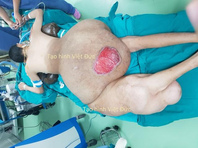 Giải cứu bệnh nhân đi như bò ra đườngvì khối u nặng hơn 40kg - 1