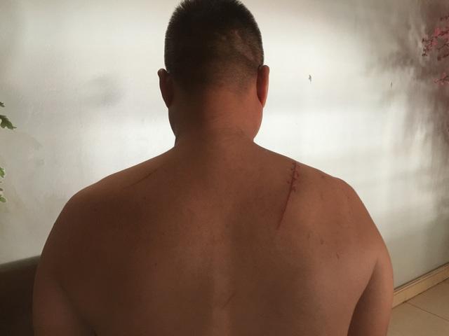Anh Lê Văn Chính bị đối tượng Trần Quang Tiến chém giữa ban ngày gây thương tích