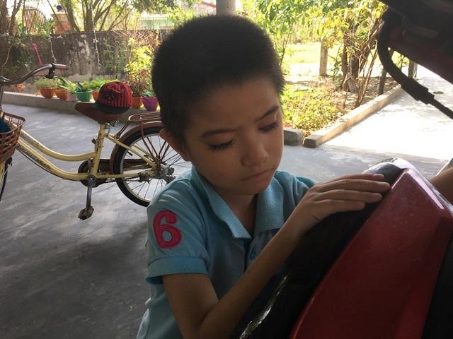 Nhờ sự giúp đỡ của các nhà hảo tâm, gia đình Thanh Trúc có thể chữa trị tốt hơn cho em, cũng nhờ vậy, cô bé đang có những thay đổi tích cực