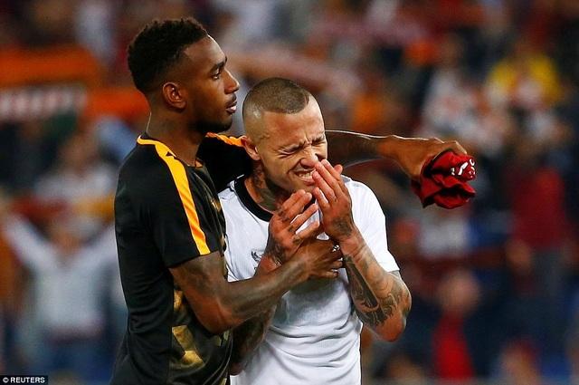 Nỗi đau lớn của Nainggolan sau trận đấu. Nếu chơi phòng thủ tốt, Roma hoàn toàn có thể hạ gục Liverpool như đã từng làm với Barcelona