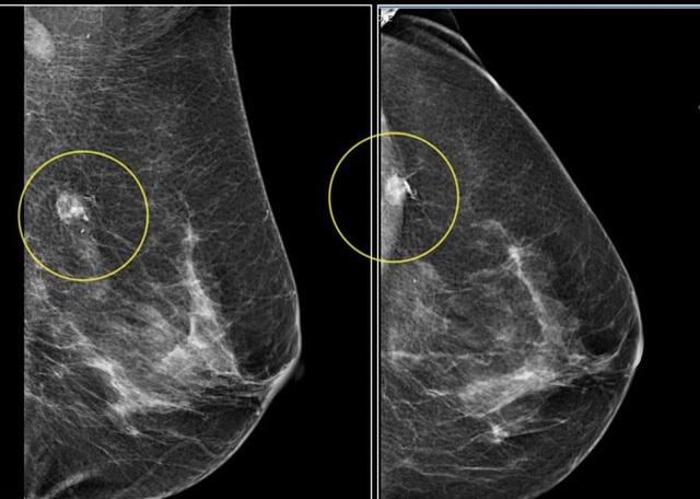 Ung thư vú có thể phát hiện sớm dễ dàng nếu như sàng lọc định kỳ.