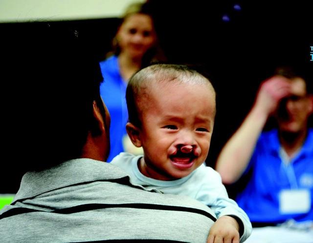 Trẻ mắc dị tật sứt môi/hở hàm ếch ở các tỉnh từ Hà Tĩnh đến Bính Thuận và các tỉnh Tây Nguyên được đăng ký phẫu thuật miễn phí tại Bệnh viện Tâm Trí Đà Nẵng từ ngày 26/5 - 6/6. Thời hạn chót để đăng ký là 15/5.