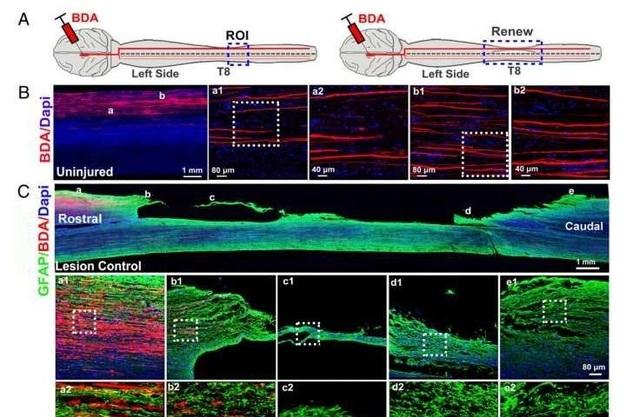 Nghiên cứu phương pháp phục hồi chấn thương cột sống cấp tính ở khỉ - 1
