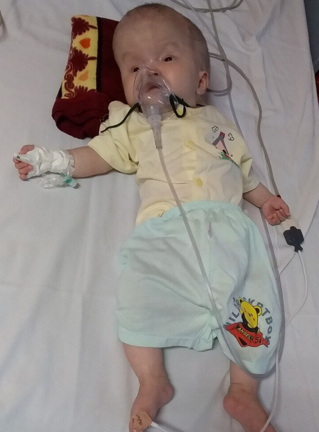 Lệ Thủy (5 tháng tuổi) vừa trải qua ca phẫu thuật thoát vị màng não tủy tại bệnh viện Nhi TW.
