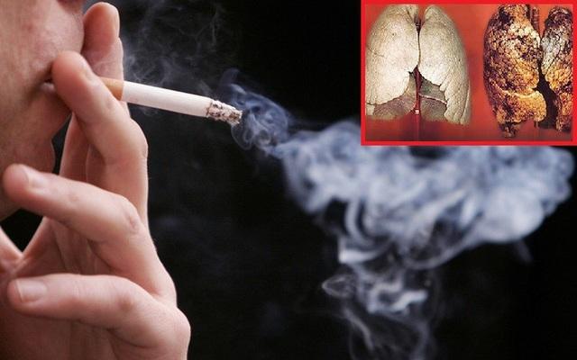 85% số người mắc ung thư phổi có hút thuốc lá