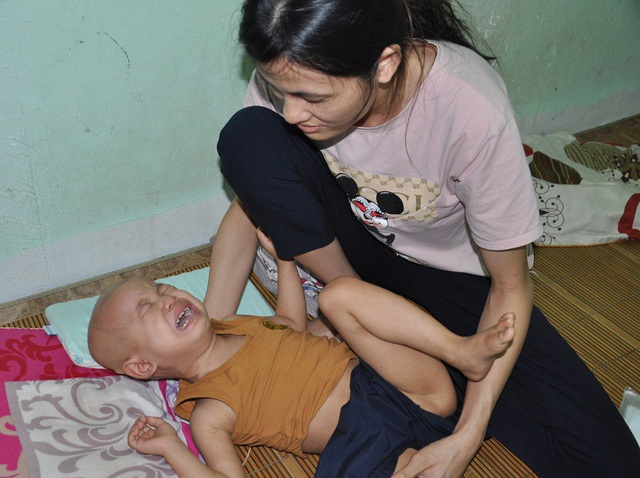 Những cơn đau hành hạ khiến bé Tâm liên tục quấy khóc.