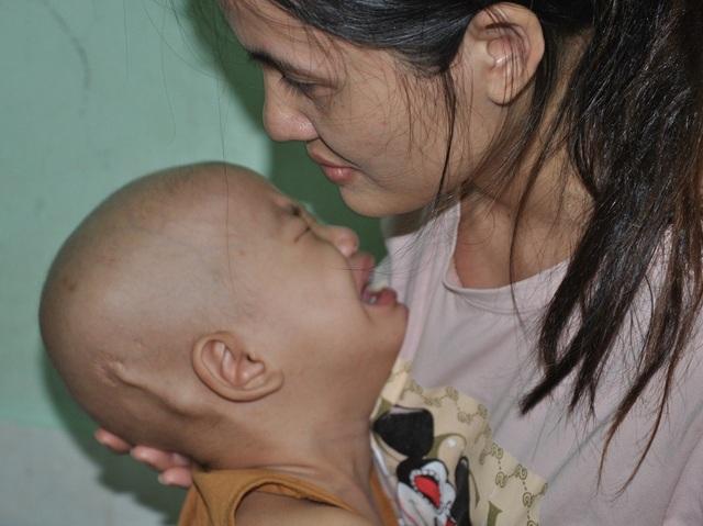3 tuổi, bé Mỹ Tâm bị u não thất đã phẫu thuật 3 lần và 9 lần hóa chất. Lần này em bị sỏi mật nên trở ra bệnh viện Nhi TW.